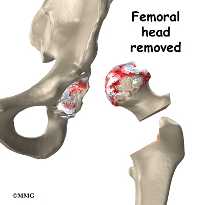 how to fix hip impingement without surgery