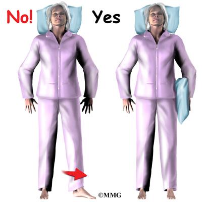 precautions for hip resurfacing