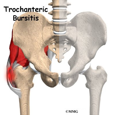 A Patient's Guide to Trochanteric Bursitis of the Hip
