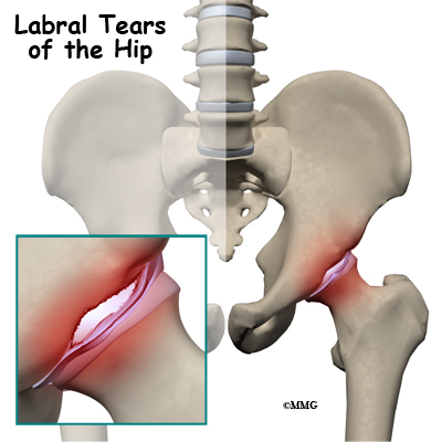 Tear in hip area hurt