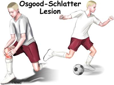 oscar slaughter knee