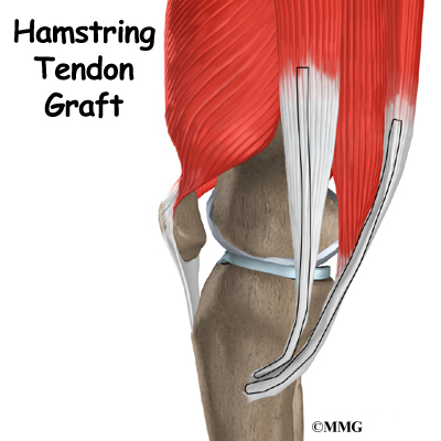 introduction when the anterior cruciate ligament acl in the knee is ...