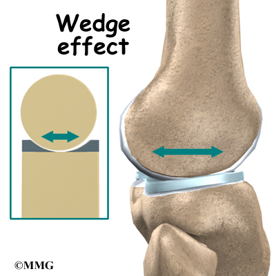 Knee Anatomy Orthogate
