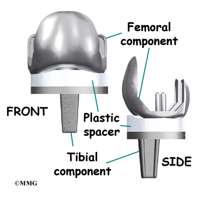 knee prothesis replacements