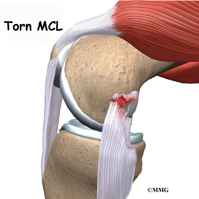Collateral Ligament Injuries of the Knee | Houston Methodist