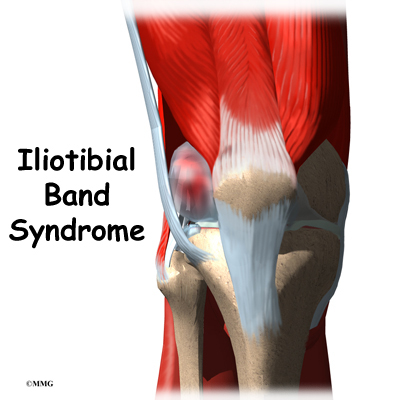 Iliotibial band syndrome orthogate for Exterior knee pain