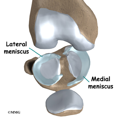 Meniscus Tear Surgery Recovery