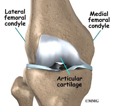 Patient education concord orthopaedics the femoral condyle is the rounded end of the lower thighbone or femur each knee has two femoral condyles referred to as the medial femoral condyle on ccuart Choice Image