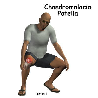 Chondromalacia Patella - Orthopedic Surgery, Algonquin, IL ...