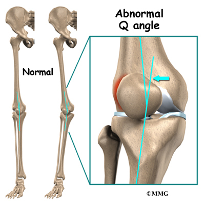 chondromalacia patella | houston methodist, Skeleton