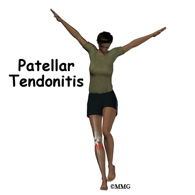 f8d20db135 A Patient's Guide to Patellar Tendonitis
