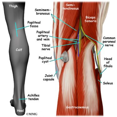 Pain in Back of Knee Sustainable Cure