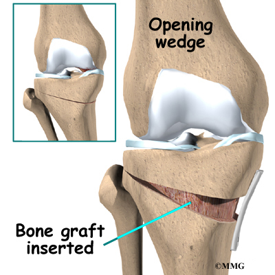 Tibial Osteotomy   Houston Methodist