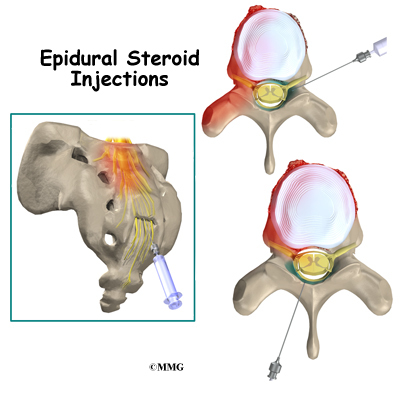 what is in an epidural steroid injection