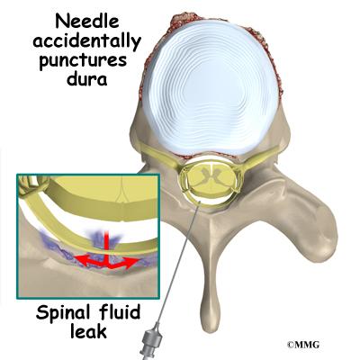 Spinal Fluid Leak