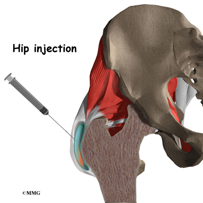 hip injection