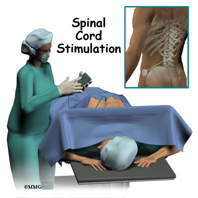 Spinal Cord Stimulators - Midwest Bone and Joint Institute