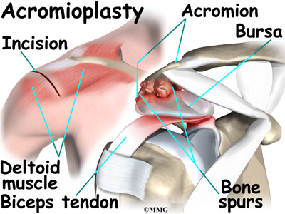 bicipital tendonitis | houston methodist, Human body