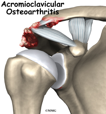 Osteoarthritis of the Acromioclavicular Joint | Orthogate