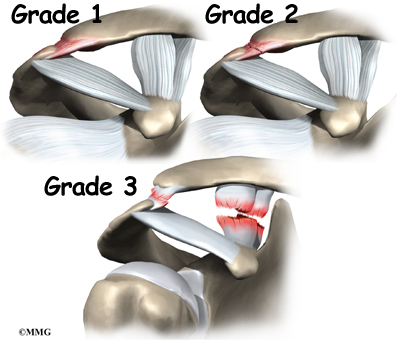 Acromioclavicular Joint Separation   Orthogate