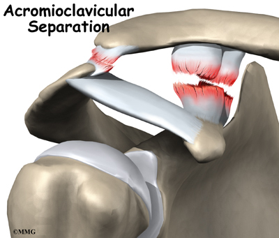 Acromioclavicular Joint Separation Houston Methodist