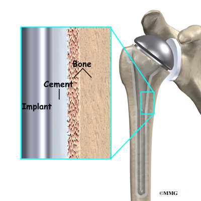 Shoulder Joint Replacement | Houston Methodist