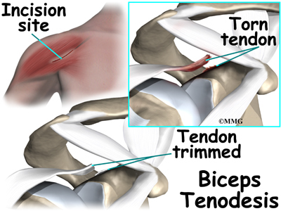 Biceps tendon tear