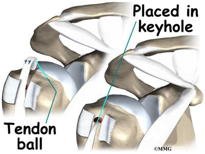 Picutre of Tendon Ball in Keyhole