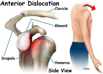 Anterior Shoulder Dislocations Anterior Shoulder Dislocation