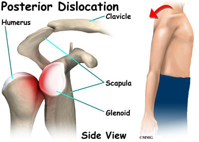 Shoulder Dislocation/Subluxation