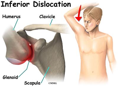 Shoulder Dislocations Treatment Most Shoulder Dislocations Are