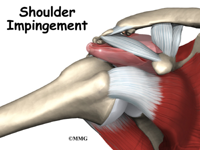 Impingement Syndrome | Orthogate