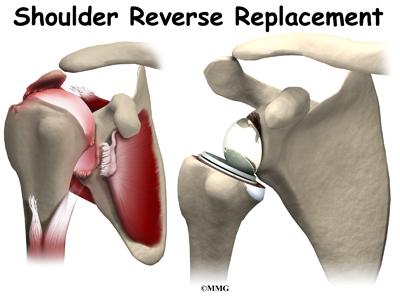 Reverse Shoulder Arthroplasty | Houston Methodist