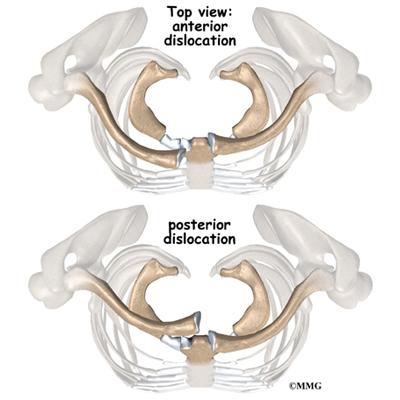 tratament articular sternum-claviculă)