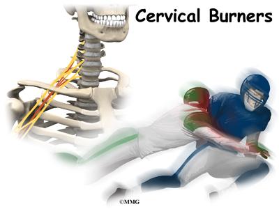 stinger  injury