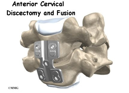 a patients guide to anterior cervical discectomy and fusion