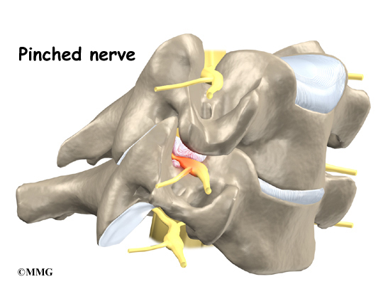 Cervical Radiculopathy Orthogate