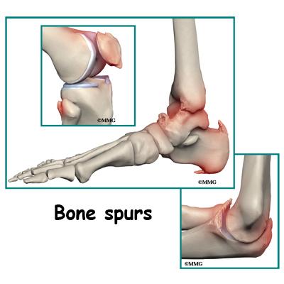 Bone Spur On Foot
