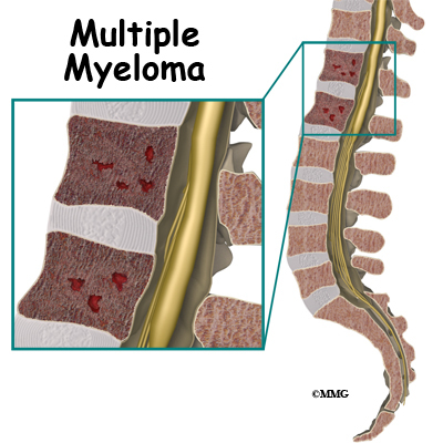 Conditions and Treatments Multiple Myeloma Cancer