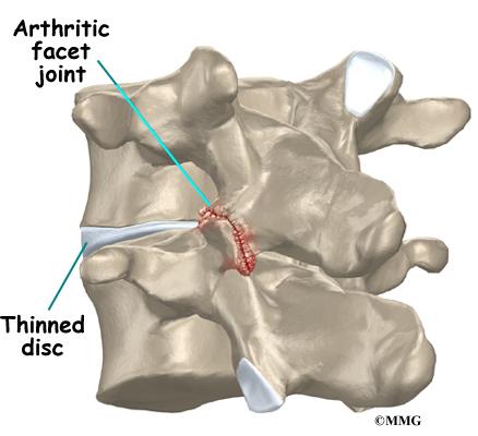Image result for lumbar facet arthritis