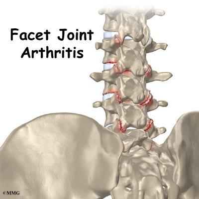 Arthritis of the lumbar facet joints