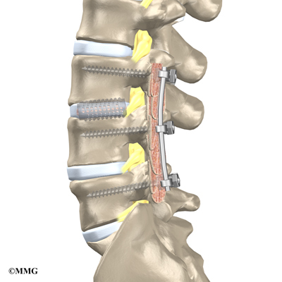 expect after lumbar epidural steroid injection