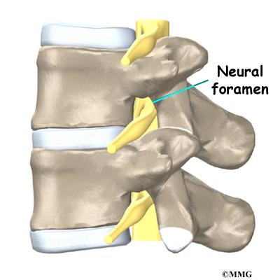 Foraminal narrowing related keywords amp suggestions foraminal