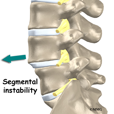 http://www.eorthopod.com/images/ContentImages/spine/spine_lumbar/low_back_pain/low_back_pain_conditions04.jpg