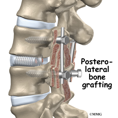 posterior lumbar fusion spondylothesis Posterior spinal fusion may be used to treat spinal deformity such as scoliosis, kyphosis, or spondylolisthesis, where correction of the spine is necessary.