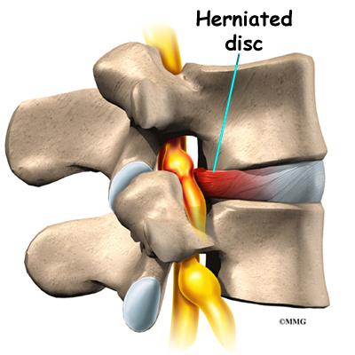کمر درد و ورزشهای درمانی آن (قسمت اول) - فیزیوتراپیست وحید صادقی