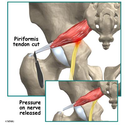 Piriformis Syndrome - Orthopedic Surgery, Algonquin, IL