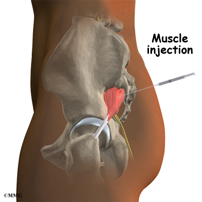 glute steroid injection spot