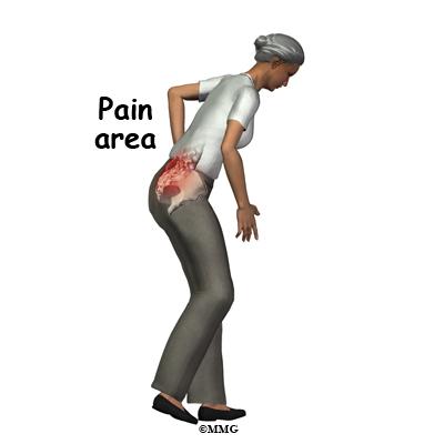 cracked pelvis healing time elderly people