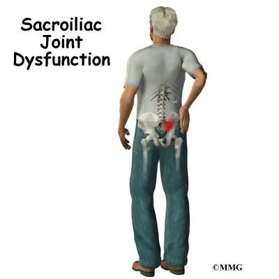 Sacroliac joint dysfunction orthopedic surgery algonquin il a patients guide to sacroiliac joint dysfunction solutioingenieria Choice Image